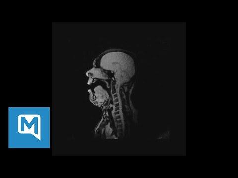 A Guy Singing an Opera in a MRI