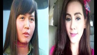 Video Walaupun Kasus Gagal Operasi Wajah Marak, Tak Bikin Kapok Para Seleb - Obsesi 12/08 MP3, 3GP, MP4, WEBM, AVI, FLV Juni 2019