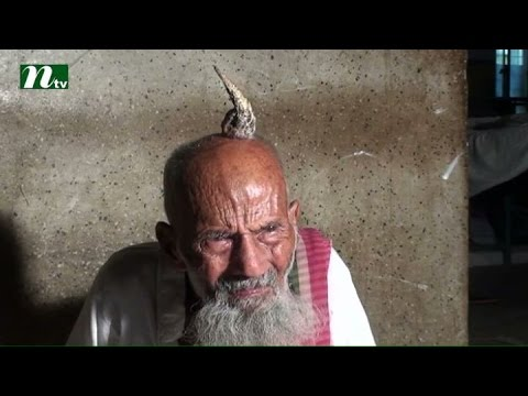 Video Horn in the head of old man at Jamalpur district in Bangladesh l News & Current Affairs download in MP3, 3GP, MP4, WEBM, AVI, FLV January 2017