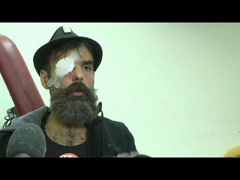 Κίτρινα Γιλέκα: Ανησυχία των αρχών μετά τον τραυματισμό διαδηλωτή…