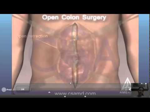 panitumumab folfox4 treatment and ras mutations in colorectal cancer