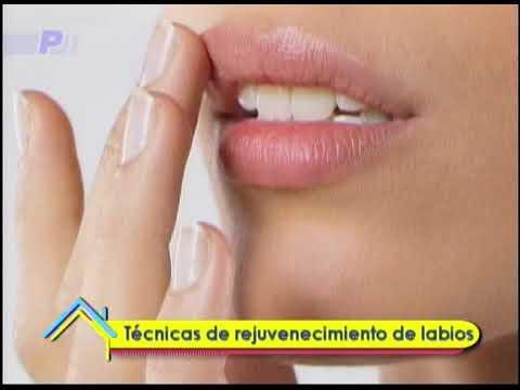 Técnicas de rejuvenecimiento de labios
