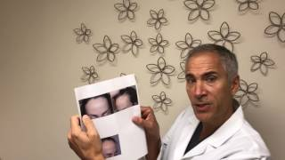 Video Result After Hairline Lowering/Forehead Reduction Surgery combined with Hair Grafting | Dr. Epstein MP3, 3GP, MP4, WEBM, AVI, FLV September 2018