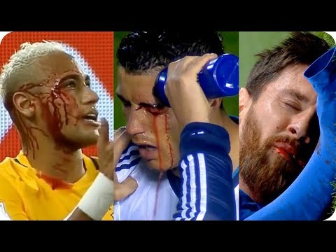 Video Faltas Terribles en el Futbol (Narración Épica) download in MP3, 3GP, MP4, WEBM, AVI, FLV January 2017