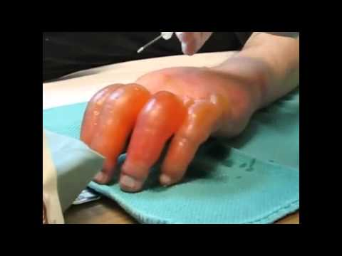comment traiter engelures pieds