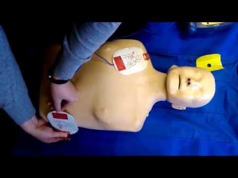 Defibulator demonstration