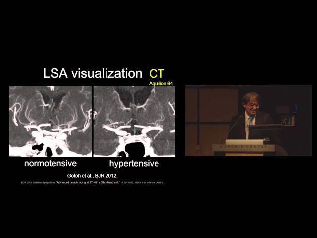 Advanced neuroimaging at 3T with a 32ch head coil
