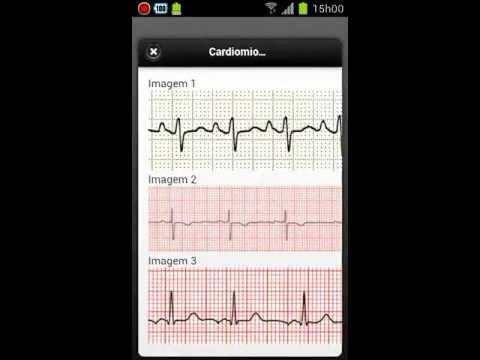 Video of ECG