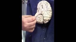 Neuroanatomia 2