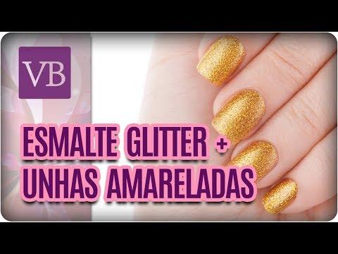 Esmalte de Glitter + Como Tirar o Amarelado das Unhas  - Você Bonita (24/11/17)