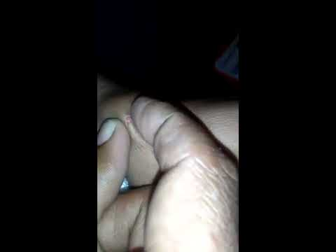 Ganglion cyst removal at home PART1