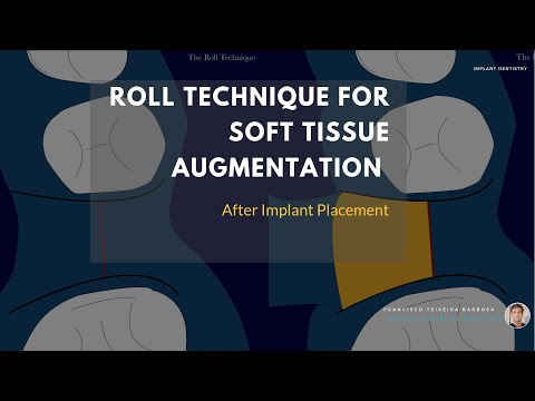 Roll Technique with implant placement (Aurea RP 4,3)