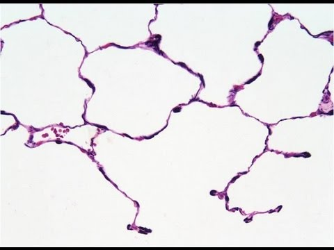tissue - A short video about connective tissue, fibers and ground substance. Please see disclaimer on my website www.my-uni.net.