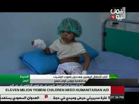 Yemen Today Channel English News24 10 2017 clip