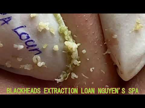 Mrs Loan Nguyen Acne Treatment - Acne Removal Blackhead, Whitehead, Hidden Acne,Bran acne, Acne Cyst
