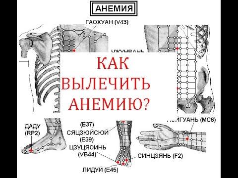 Как вылечить анемию?