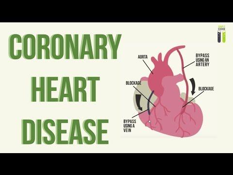 IGCSE Biology Revision - Part 8 - Coronary Heart Disease