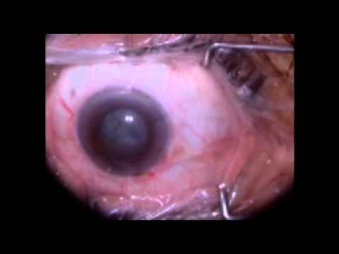 Dr. John Rezapour MD Cataract Surgery, Eye Surgery, Eye Disease, Eye Medications