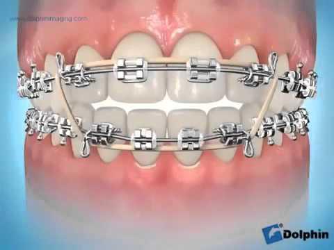Vidéo élastique inter maxillaire intercuspidation