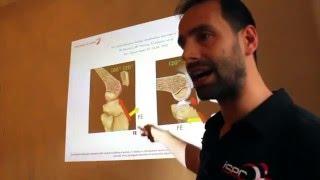 Lesione LCA, confronto esercizi CCA e CCC