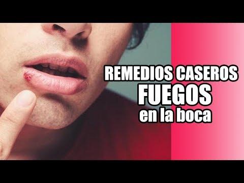 Videos caseros - REMEDIOS CASEROS PARA LOS FUEGOS EN LA BOCA