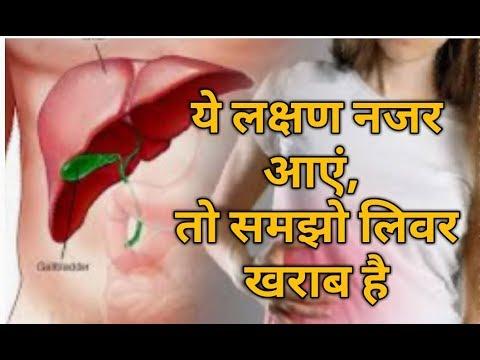 लीवर खराब होने के लक्षण  sign of Liver damage in Hindi  Liver m khrab hone k kya lashn h By Nida Ali