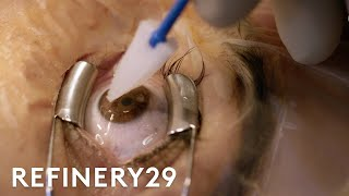 What Getting Laser Eye Surgery Is Really Like   Macro Beauty