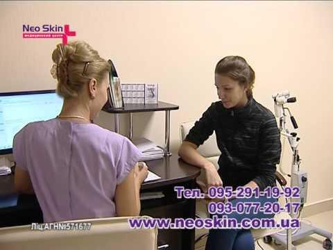Лечение Миомы в клинике Neo Skin