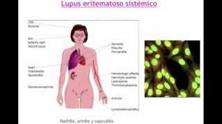 Umh1947 2012-13 Lec001 Otras Enfermedades De Base Autoinmune (I)