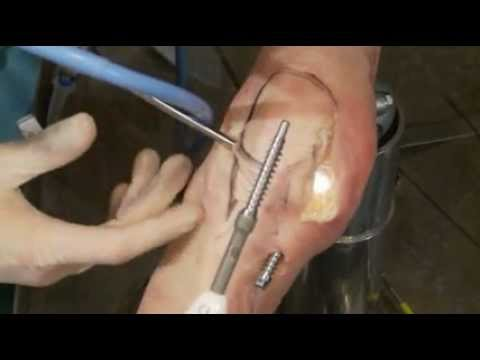 Arthrosurface UniCAP surgery with Dr Miniaci