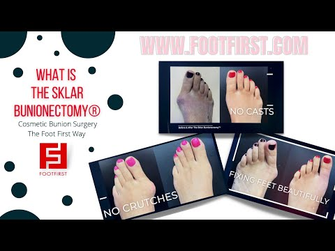 Bunions: Before and After Photos