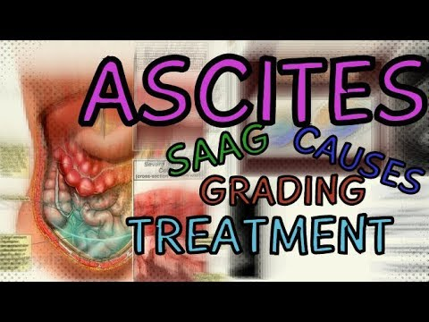 What are Ascites? Transudate vs Exudate - SAAG - Fluid Wave Test - Shifting Dullness -  Treatment