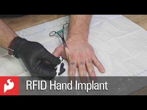 RFID Hand Implant with SparkFun!