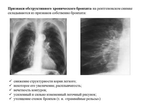 Инструментальные исследования при хронических неспецифических заболеваниях легких