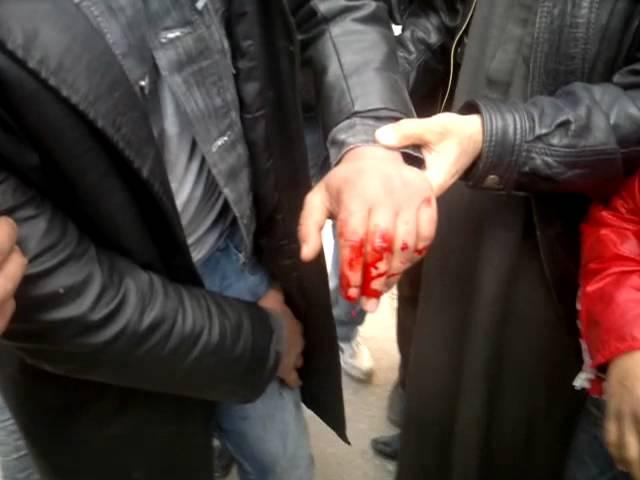 اصابة احد المتظاهرين في كفر نبل
