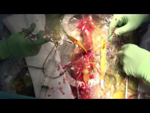 Penile Implant Surgery AMS 700CX