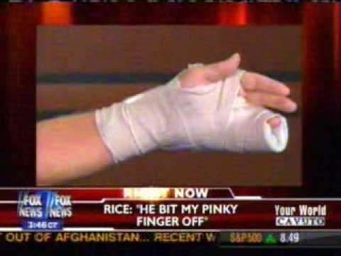 Obama Supporter Bites Off Health Care Protesters Finger – Cavuto Sept 3rd 2009
