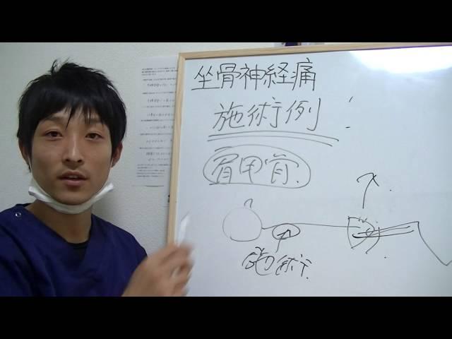 坐骨神経痛の原因 2