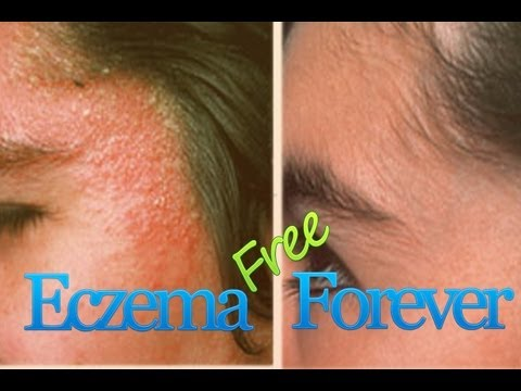 Natural treatment for eczema on face or skin itching | itchy skin causes