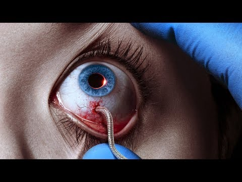 The Strain (TV Series - 2014) Season 1 Trailer