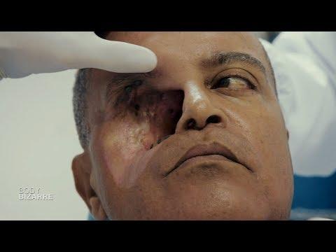 Video Défiguré à cause d'une tumeur faciale fulgurante ! (Body bizarre) download in MP3, 3GP, MP4, WEBM, AVI, FLV January 2017