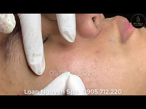#Treatment blackheads and whiteheads for handsome guys p2
