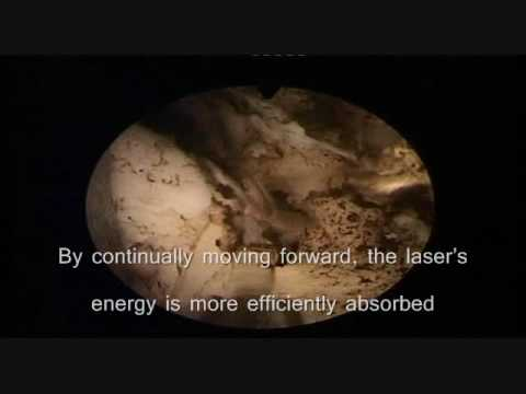 Revolix BPH Laser Revolix Laser Urology Prostate Surgery