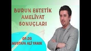 Mustafa Ali Yanık - Burun Estetik Öncesi ve Sonrası