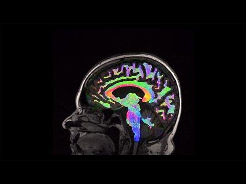 Η τραυματική εγκεφαλική βλάβη και τι μπορούμε να κάνουμε γι' αυτήν…