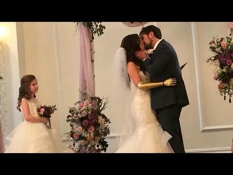 Nordstrom Model Wears Gold Prosthetic Arm on Wedding Day