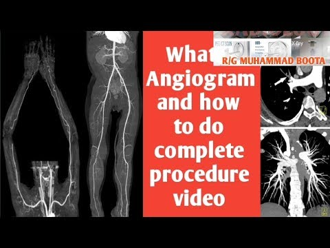 What is arteriogram and how angiography is do Also see abdominal aerota in 3D CT Scan