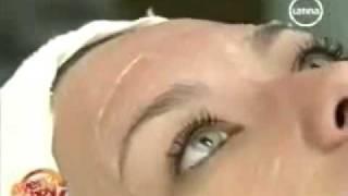 Whitening Peel en Nova Skin- Elimina las manchas y aclara tu rostro