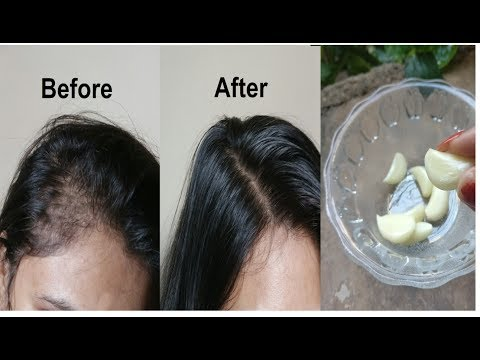 Grandma's SECRET Recipe for Hair growth in 30 days Garlic & Coconut hair oil treatment