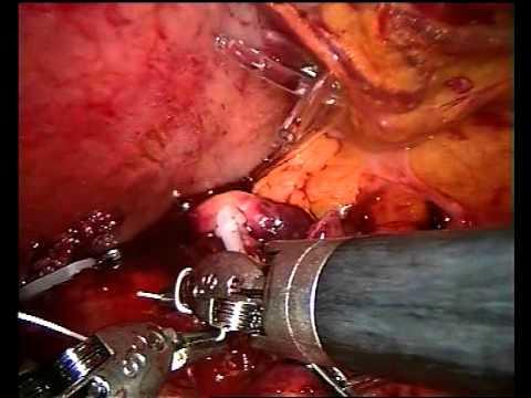 V roli chirurga robot